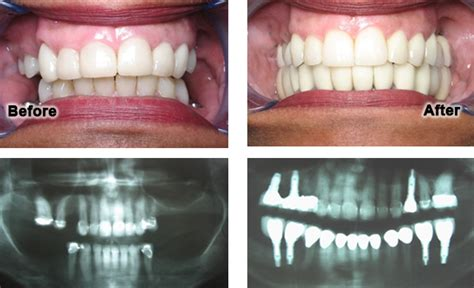 comfort dental lawsuit dental implant case gallery