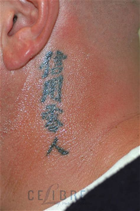 before and after tattoo removal on neck 4