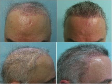 hair transplant problems hair transplant images of real patient results dermhair