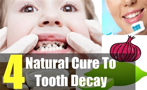 dental testimonials cure tooth decay 4 ways to naturally treat tooth decay natural ways to