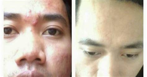 Masker Spirulina Hpai obat herbal manjur sinergi resep cara herbal alami
