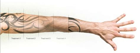 how many treatments to remove a tattoo erase removal how many laser treatments do you need