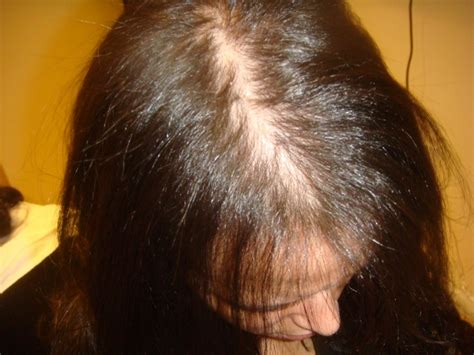i have female pattern hair loss female pattern hair loss nyc ny new york nj ct