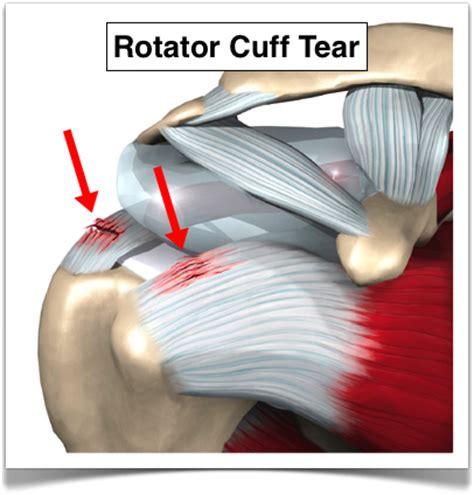 torn rotator cuff diagram rotator cuff time off survey