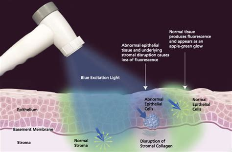 cancer screening light velscope cancer treatment