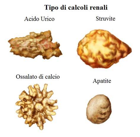 ossalati di calcio alimenti da evitare calcoli e coliche renali