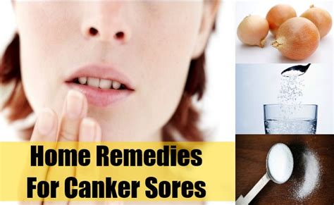home remedies for canker sores home remedies