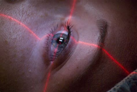 eye surgery ways to relieve and discomfort after undergoing laser eye surgery