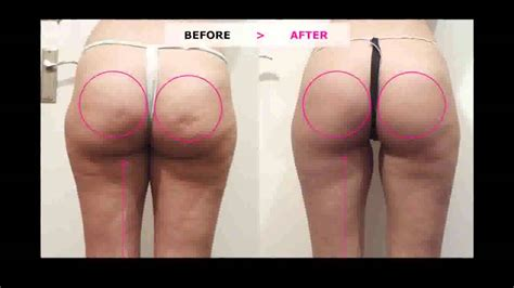 Miller Has Stretch Marks And Cellulite by Cellulite Review