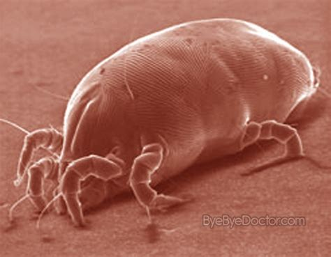 bed mites pictures dust mites pictures allergy symptoms rash treatment