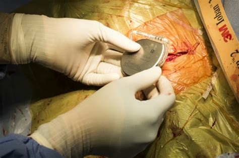 Secrets from smart devices find path to US legal system Pacemaker Surgery