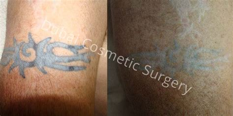 surgical excision tattoo removal brisbane 1000