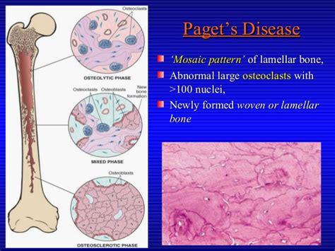 mosaic pattern of lamellar bone premalignant lesions