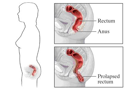 diagram of prolapsed uterus diagram prolapsed uterus images how to guide and refrence