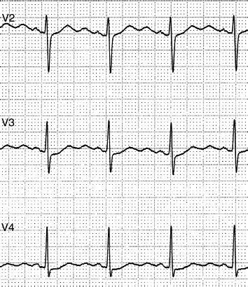 aborted sudden cardiac death swimming triggered aborted sudden cardiac death in a