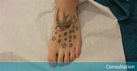 celebrities tattoo removal bird removal avalon laser clinic