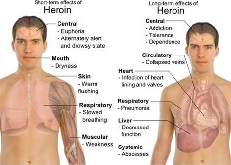 Does Affect Thc Detox by Effects Of Heroin On The Rlrecovery Addiction