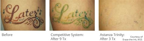 laser tattoo removal raleigh nc astanza best nd yag ruby removal laser