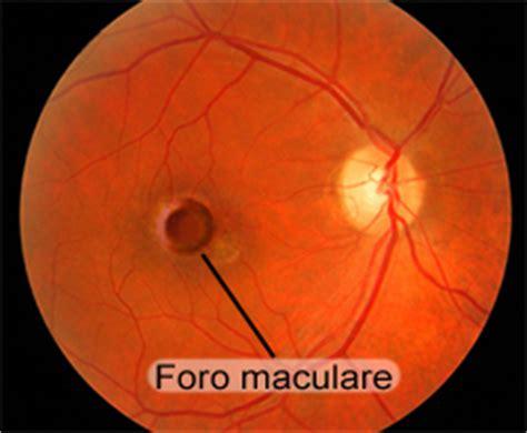 oculista pavia sintomi diagnosi e cure per il foro maculare oculista