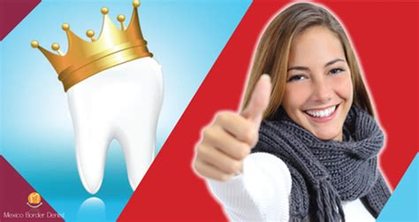 All on 8 Dental Implants in Mexico