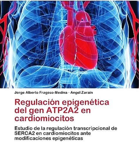 infarto miocardio bandamobile ataque card 237 aco o infarto de miocardio abril 2013