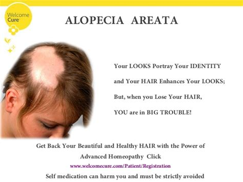 welcome to advanced hair solutions hair loss advisors hair loss taking away your confidence fear not