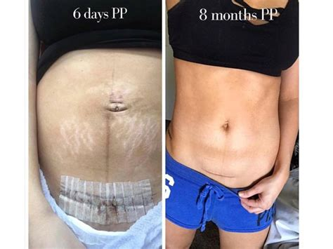 how long does c section swelling last c section scar healing www pixshark com images