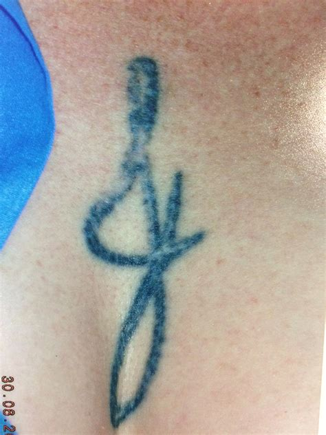 brisbane tattoo removal results brisbane modification removal