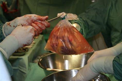Hårtransplantation by Der Own3d Bilderthread Seite 268 Allmystery