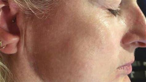 Masker Dermal skin anti ageing