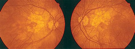 fundus exam findings abnormal ocular findings photo quiz american family