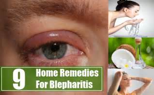itchy eyelids home remedy 9 home remedies for blepharitis treatments and