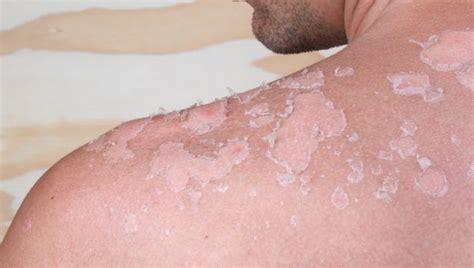 8 Tips For Spotting Skin Cancer Early by Simple Ways To Spot Skin Cancer Skin Cancers Sharecare