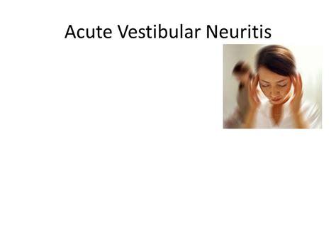 vestibular neuritis vertigo dr tharaka chandrakumar gpst2 dr humphreys