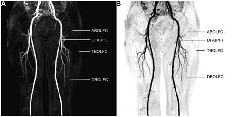 Three Dimensional Contrast Enhanced Mr Angiography Of Aortic Dissection A Pictorial Essay by Three Dimensional Contrast Enhanced Magnetic Resonance Angiography For Anterolateral Thigh Flap