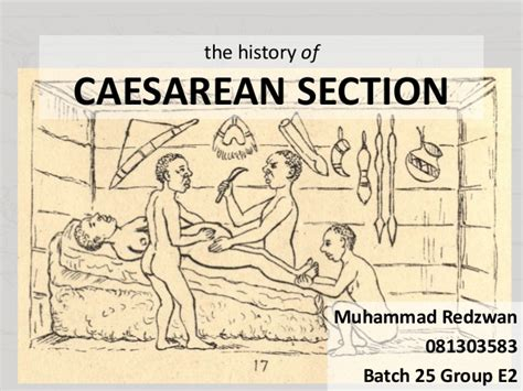 cesarean section origin the brief history of caesarean section