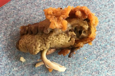 Bridge To Africa Finds For A Cause by Finds Lung Attached To Kfc Chicken Breast In