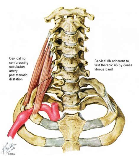 images  orthopedic injury   spine  pinterest