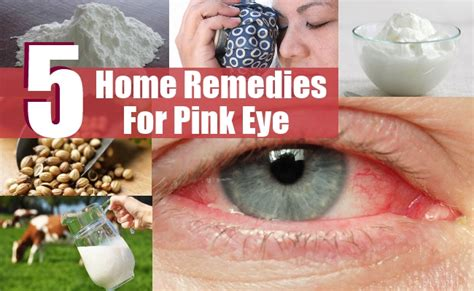 effective home remedies for pink eye treatments