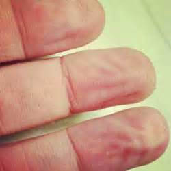 why does skin wrinkle in the bathtub why do our fingers and toes wrinkle during a bath