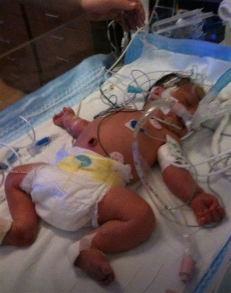 how soon can you walk after c section fundraiser by michelle lynn help jacob walk sdr surgery