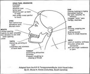 symptoms for tmj