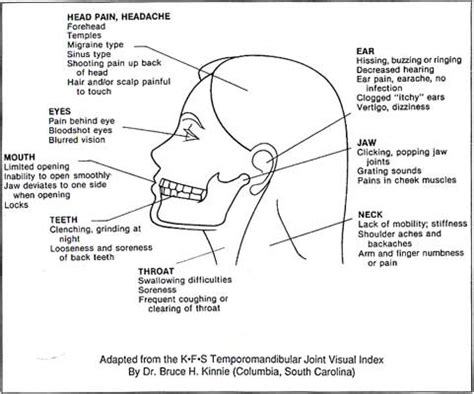 what are the causes and symptoms of jaw pain ehow symptoms for tmj