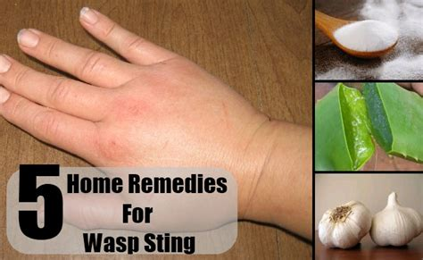 wasp sting home remedies treatments and cure
