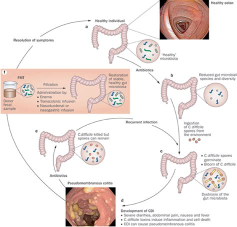 Stool Transplant C Diff by Of Minnesota Microbiota Transplantation Program