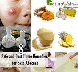 home remedies for skin 8 safe and best home remedies for skin abscess