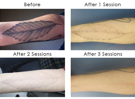 results of laser tattoo removal laser removal shining light on a flourishing industry