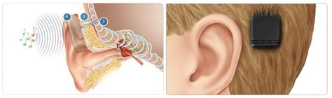 getting a perm with a baba hearing implant can i bone anchored hearing aids implants baha ear associates