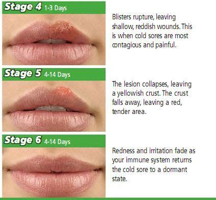 But We All She Has Herpes by 18 Ways To Get Rid Of A Cold Sore Overnight We Cas And Home