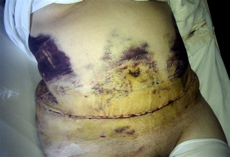 imagenes tatuajes abdominoplastia cicatriz related keywords cicatriz long tail keywords